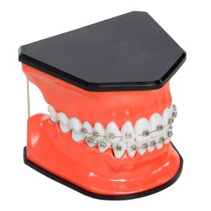 Twice Life-Sized Orthodontic Model