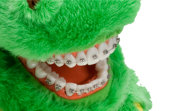 Orthodontics Added